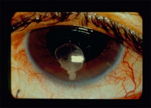 The cysticerci can invade multiple tissues. Here is a larval form in the eye of a cysticercosis patient.